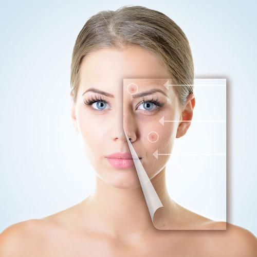 acne - Dermatología clínica