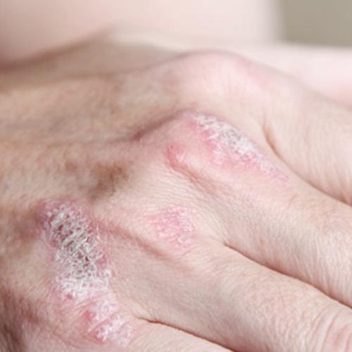 psoriasis - Dermatología clínica