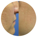 acne y cicatrices de acne