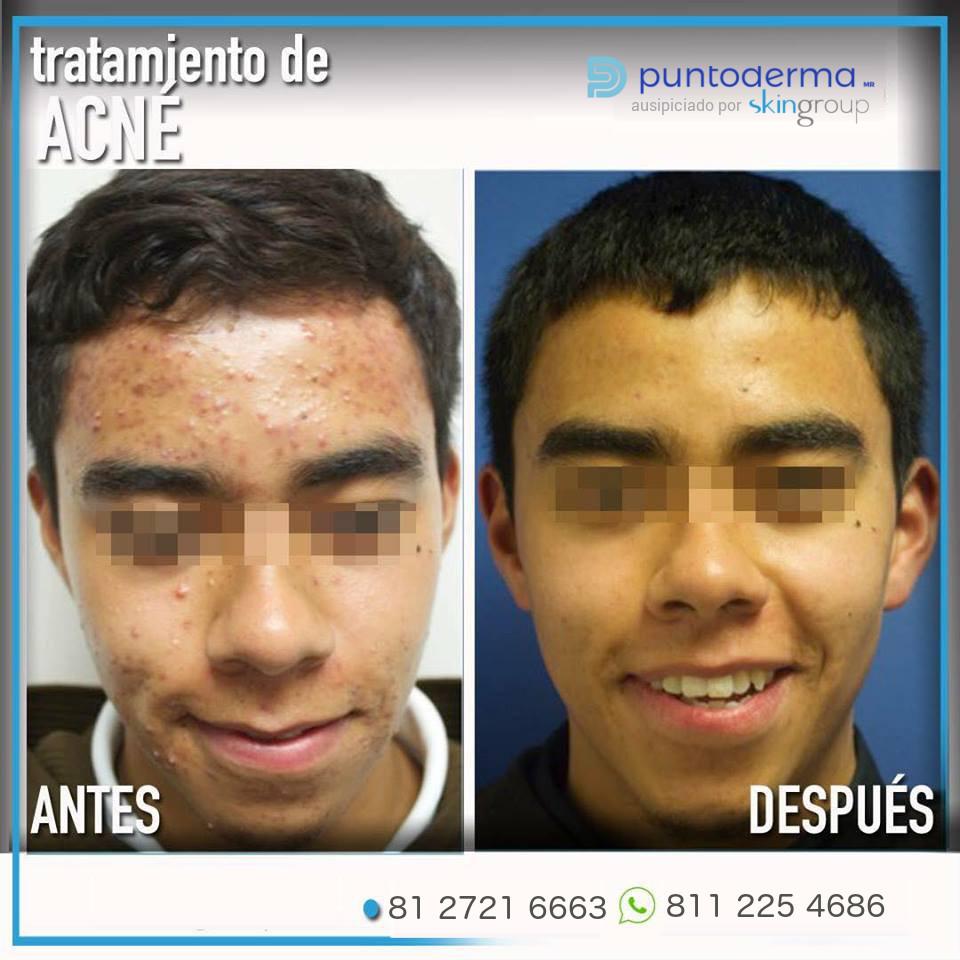 Acné en Monterrey - resultados