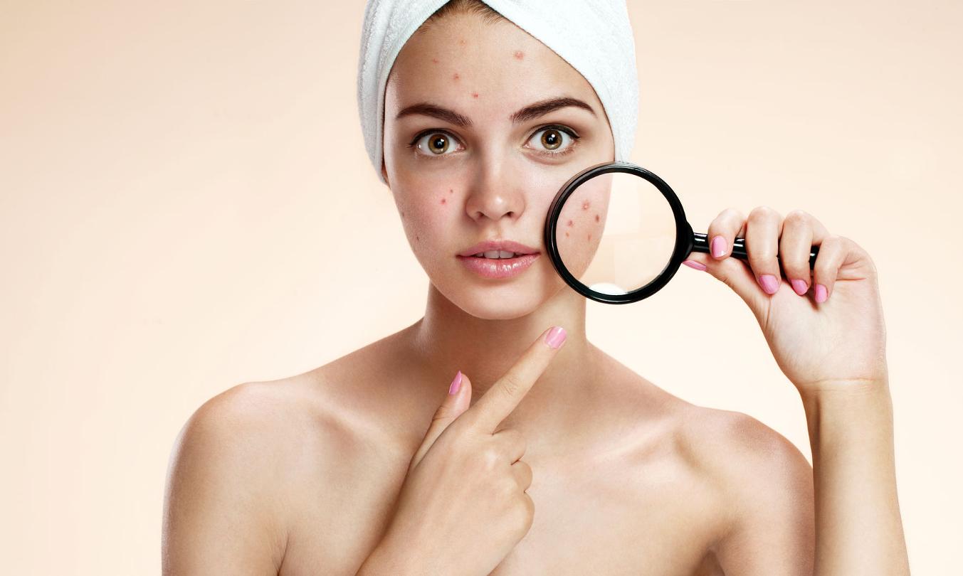 acne monterrey