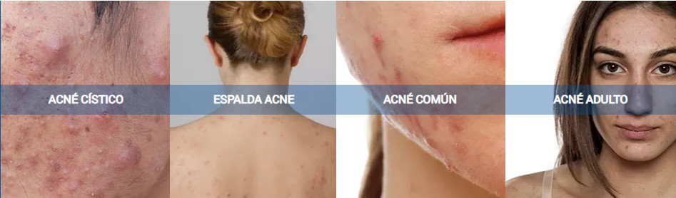 tipos de acne - Acné en Monterrey