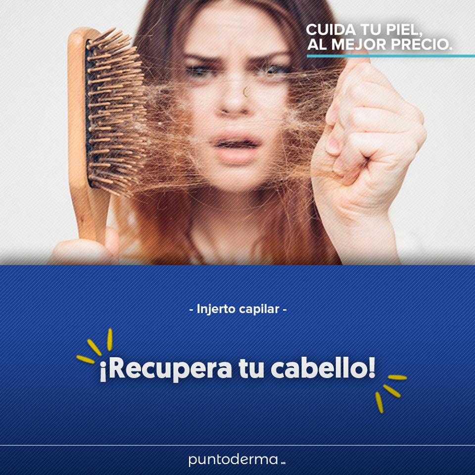 especialistas en alopecia en san nicolas